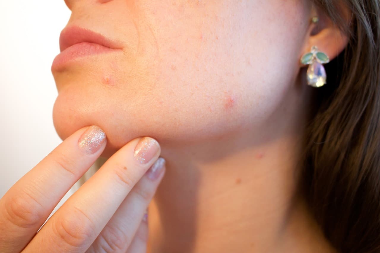 Effective Tips To Reduce Pesky Acne Naturally