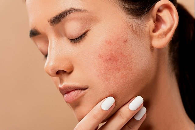 Natural Treatment Acne Ideas To Try At Home